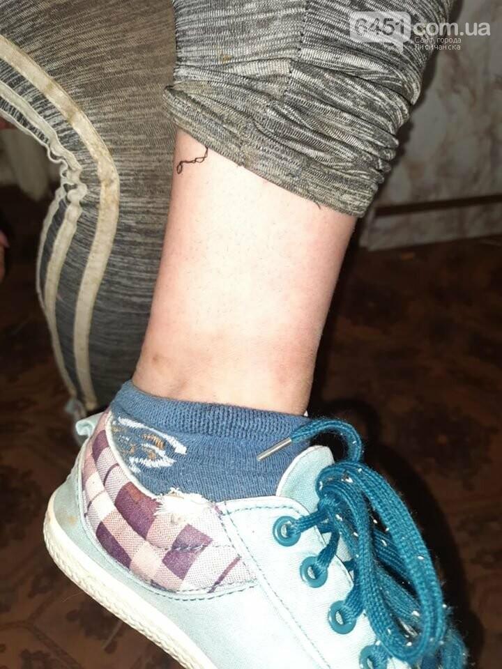 В Кременной 14-летняя измученная девочка с цепью на ногах, приползла к соседу просить помощи: подробности, фото-2